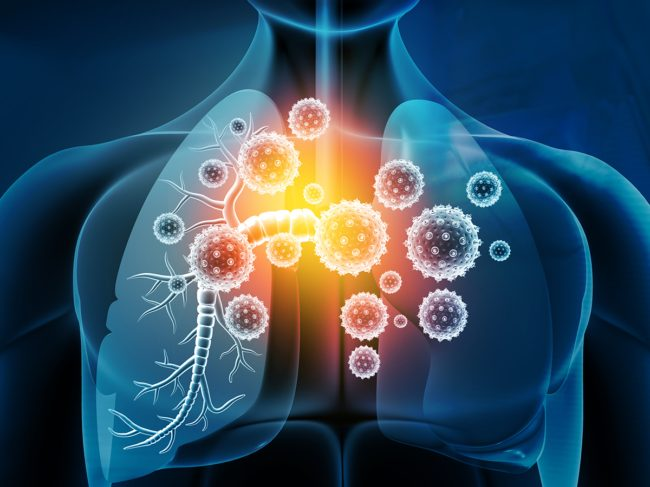 Repurposing Tocilizumab In Scleroderma Patients May Forestall Early Lung Infection